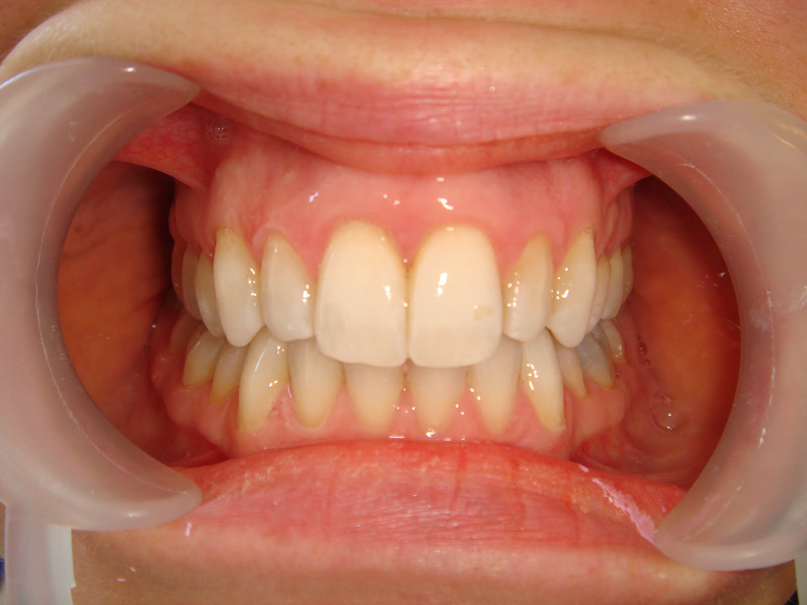 Treated With Invisalign i7 in 14 Weeks: - After