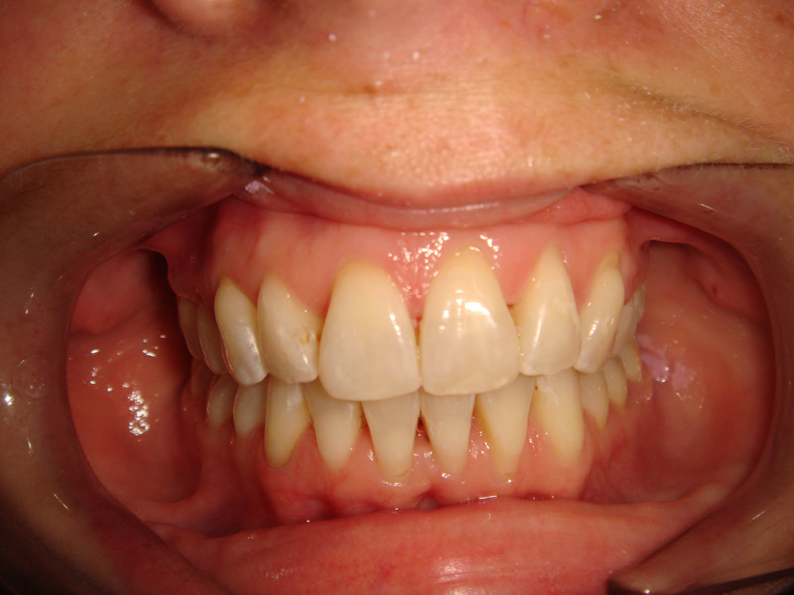Treated With Invisalign Full 10 Months - After