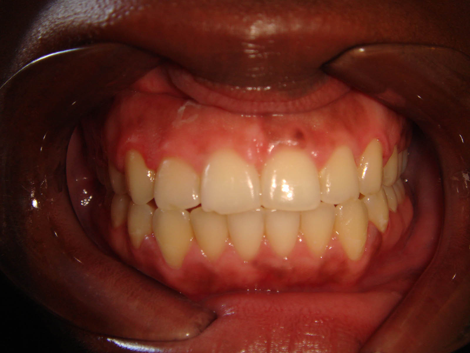 Treated With Fixed Braces For 16 Months - After