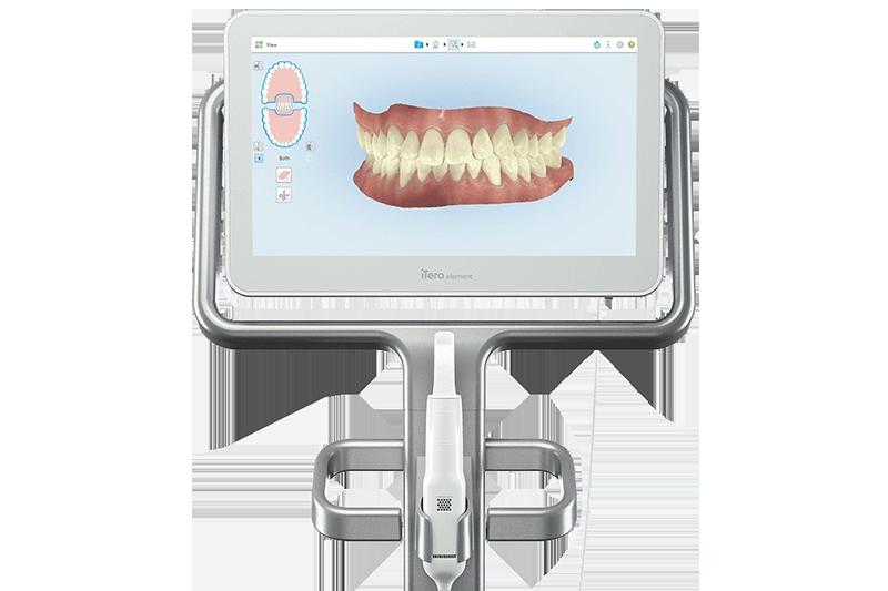 3D Digital Scan