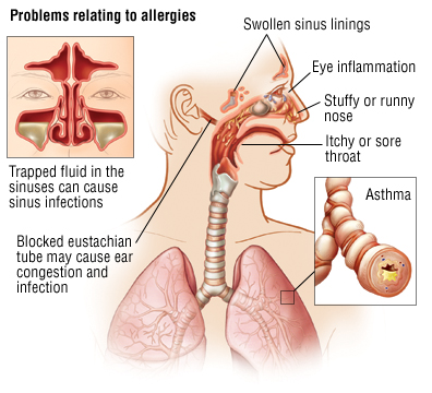 Allergic Rhinitis diagram