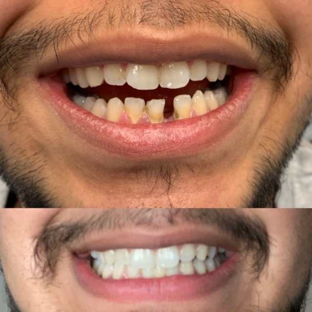 Before and after dental work image