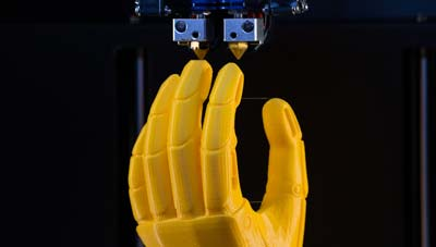 3D Printed Prosthetics - Most Common Choices