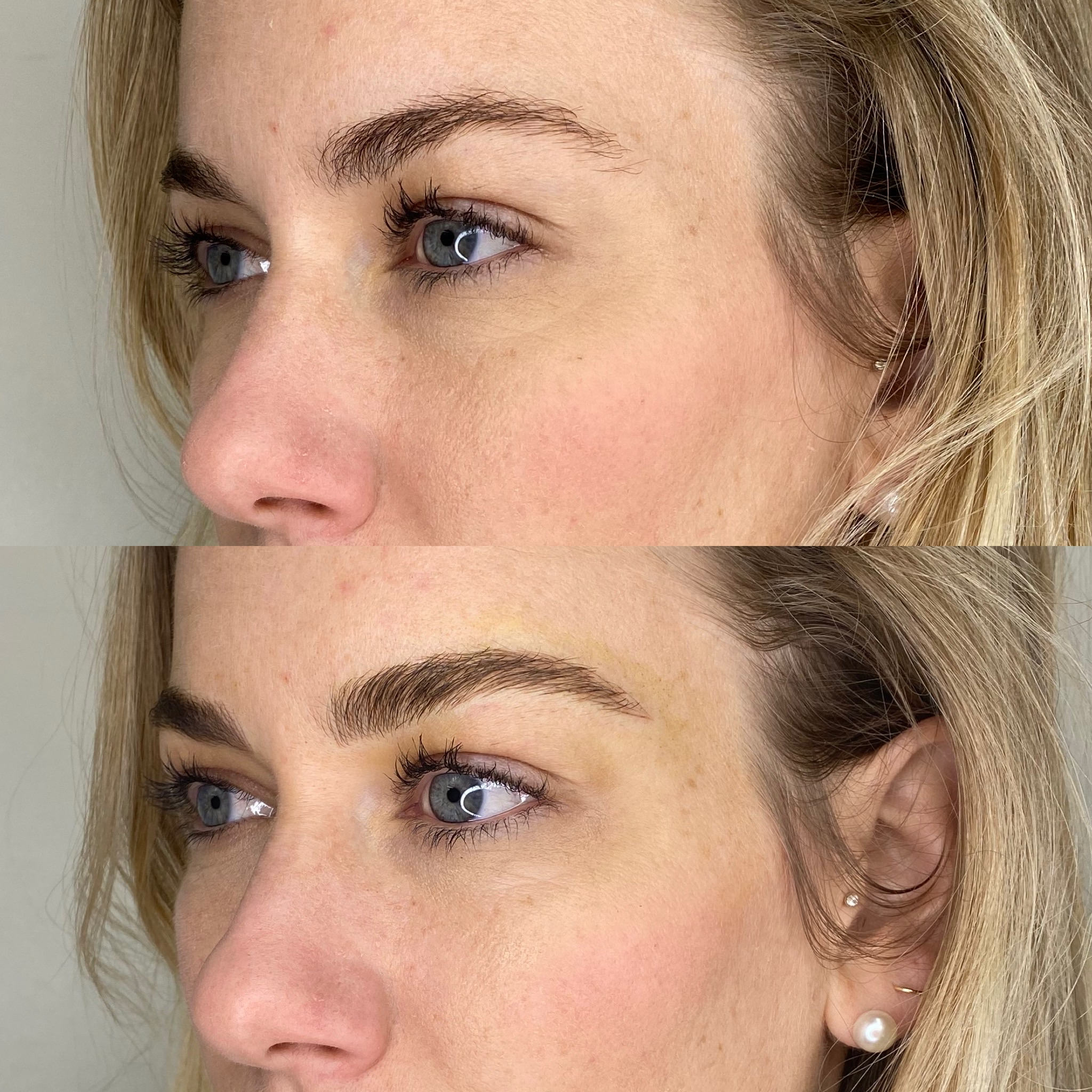 before and after comparison of brow work