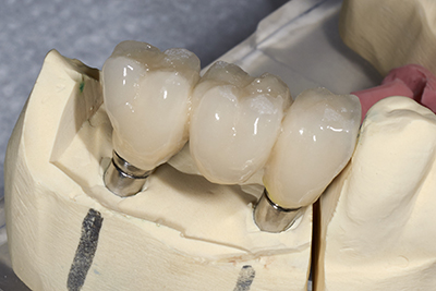 Molding of dental Bridge implant from Shenandoah Family Dentistry dentist office