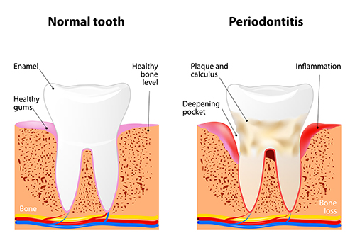 Periodontitis Diagram from Shenandoah Family Dentistry