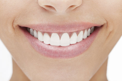 Woman smilimg and showing off her Porcelain Veneers from Shenandoah Family Dentistry