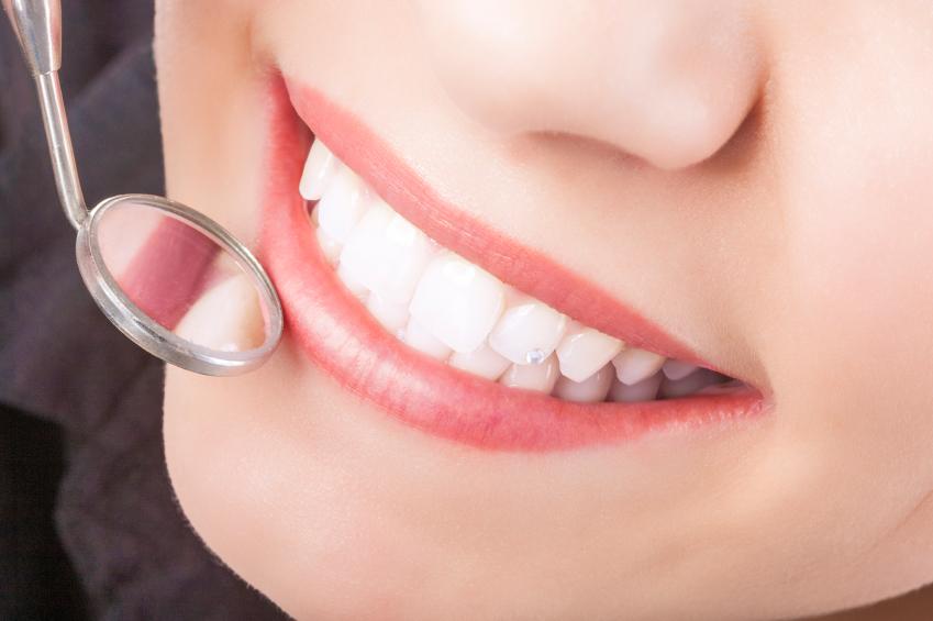 Tool to check for Restorative Dentistrty needs at Shenandoah Family Dentistry