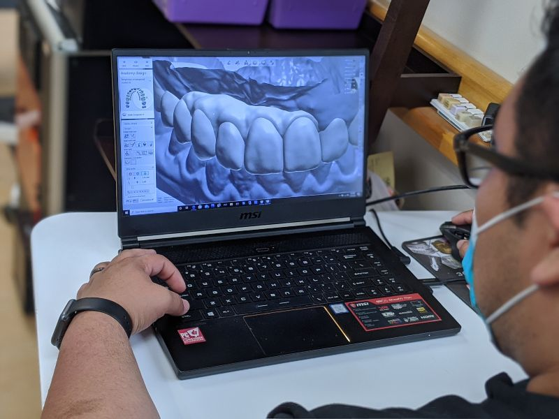 dental assistant looking at 3d model of a patient's teeth