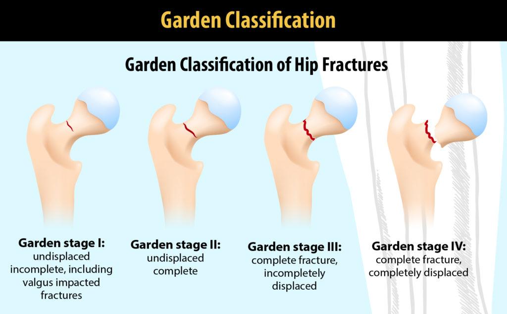 Garden classification