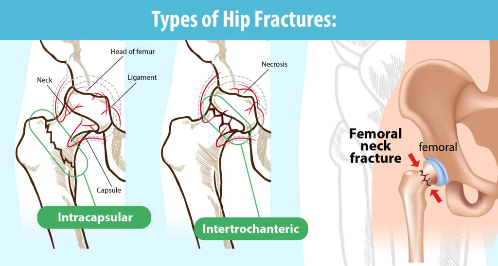 Types of hip fractures