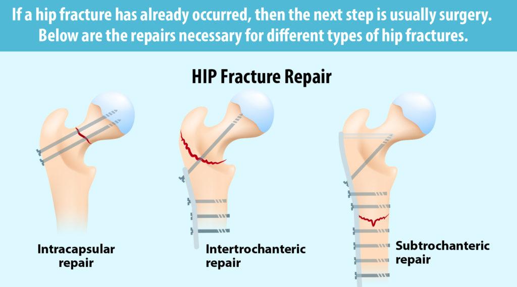 Hip fracture repair