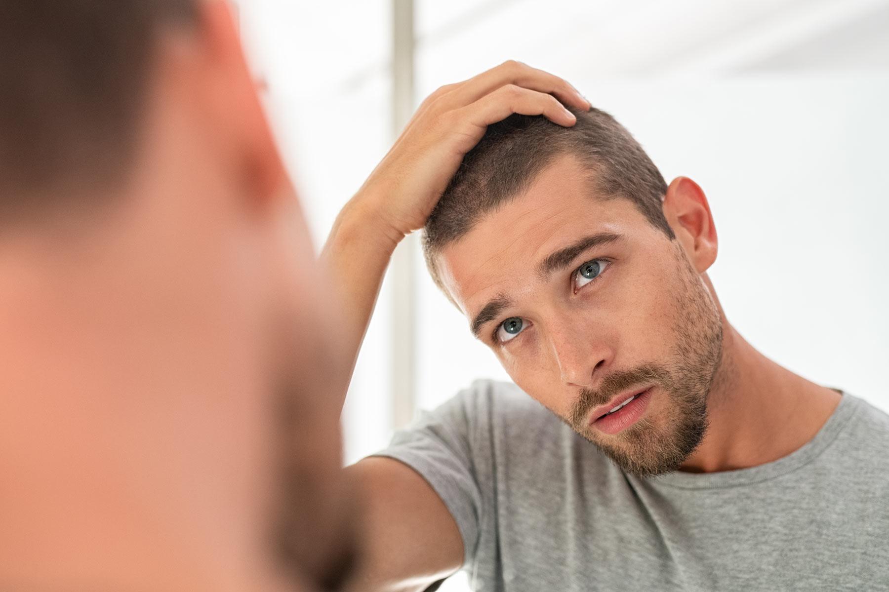 Hombre de mediana edad mostrando signos de caída de cabello