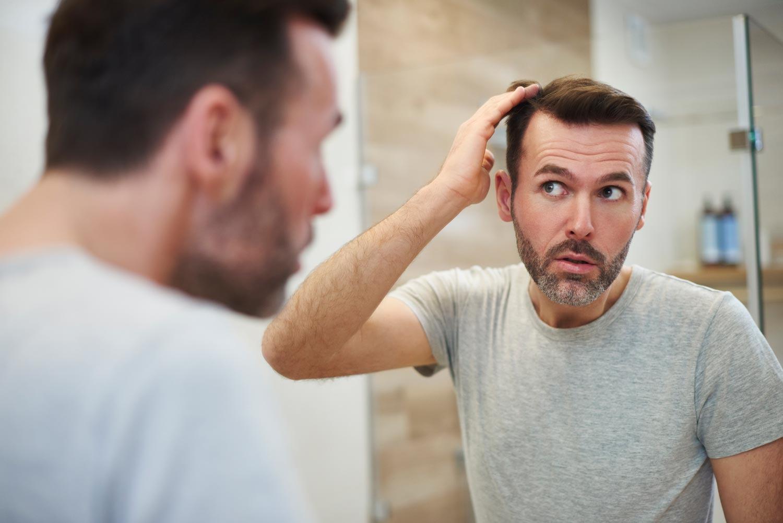 Hombre de mediana edad mirándose al espejo y evidenciando caída de cabello
