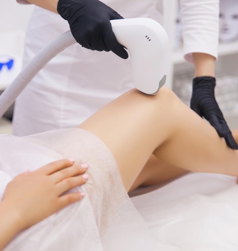 Mujer recibiendo depilación láser en las piernas