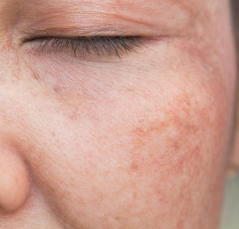 Mujer mostrando sus manchas en la piel de las mejillas