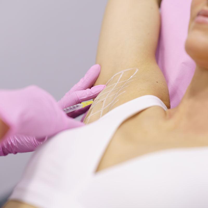 tratamiento-para-hiperhidrosis