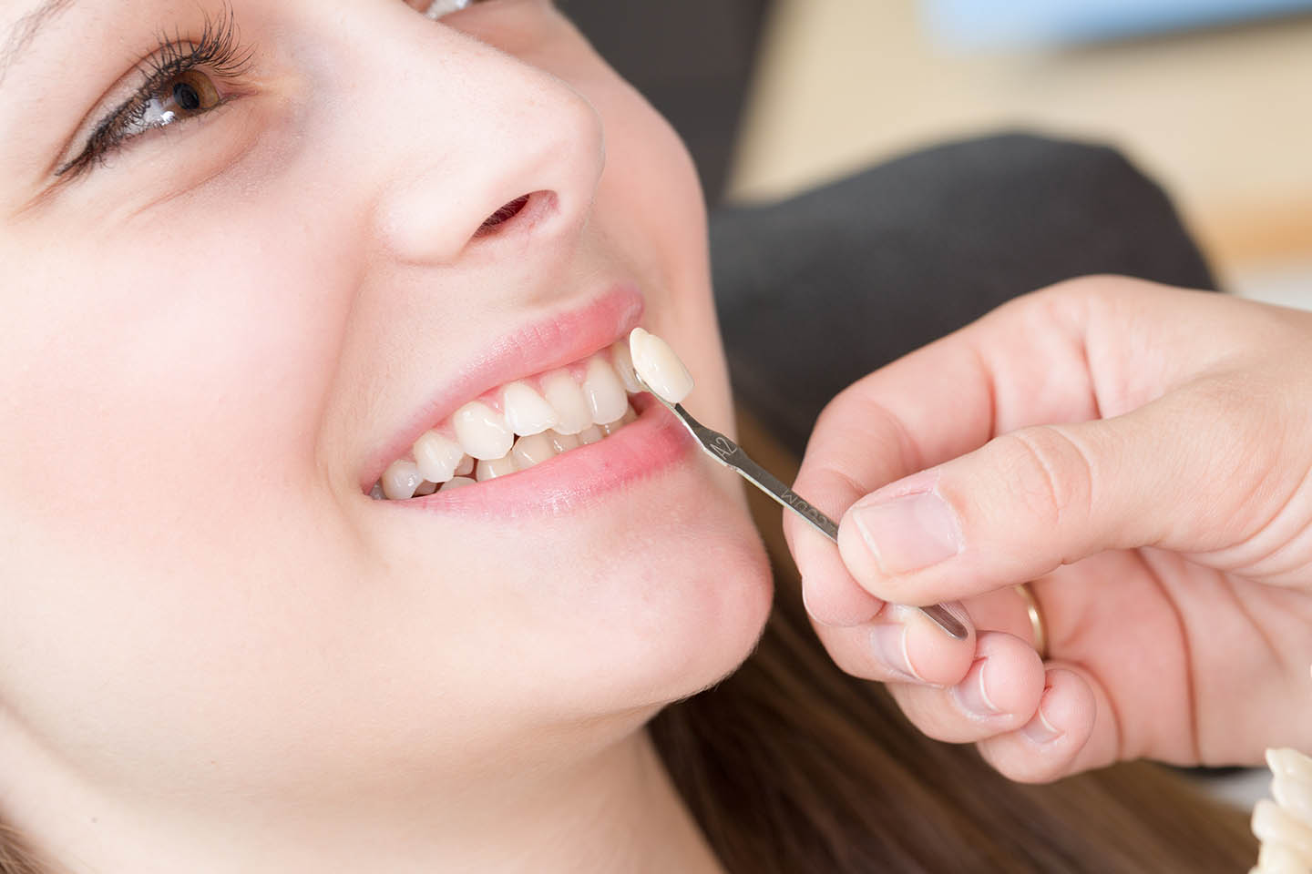 Doctor matching and installing veneer color to teeth