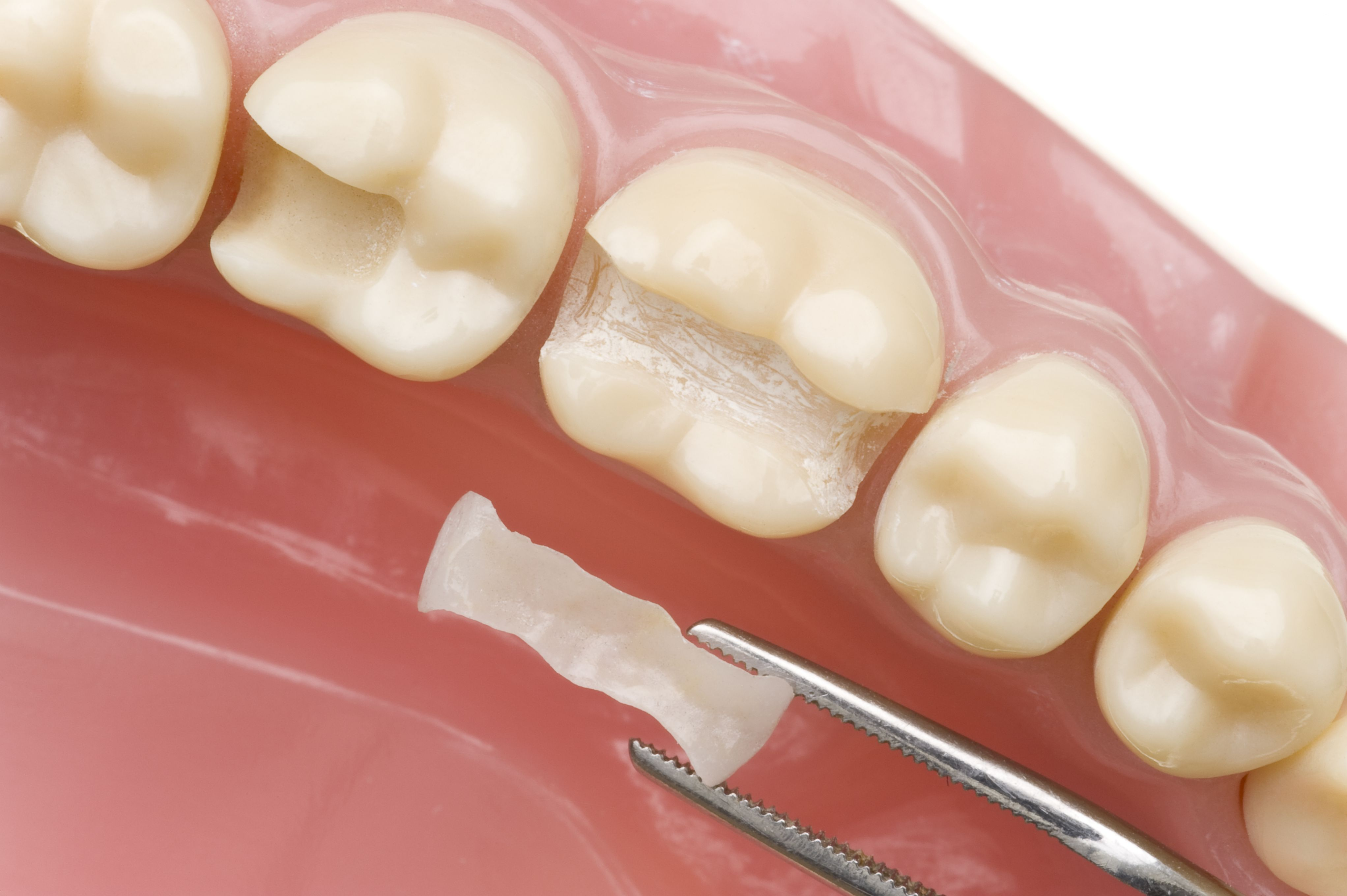 Dental inlay being set into tooth model