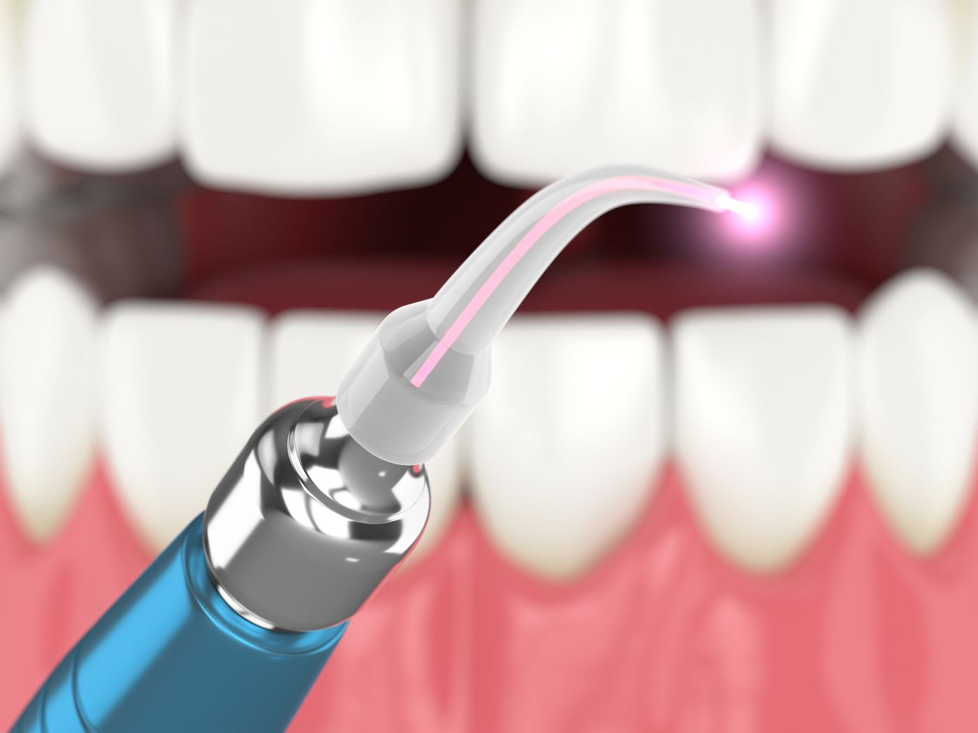 Laser being used to treat gum inflamation