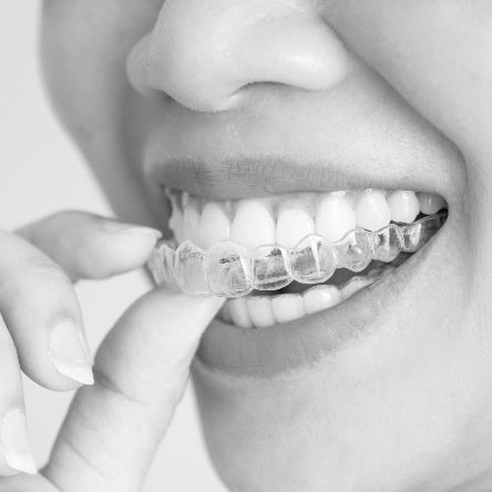 Patient holding their invisalign