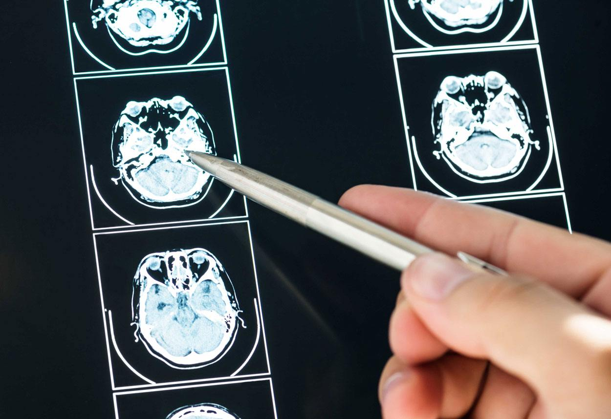 LSD and psilocybin found to be amongst safest recreational drugs
