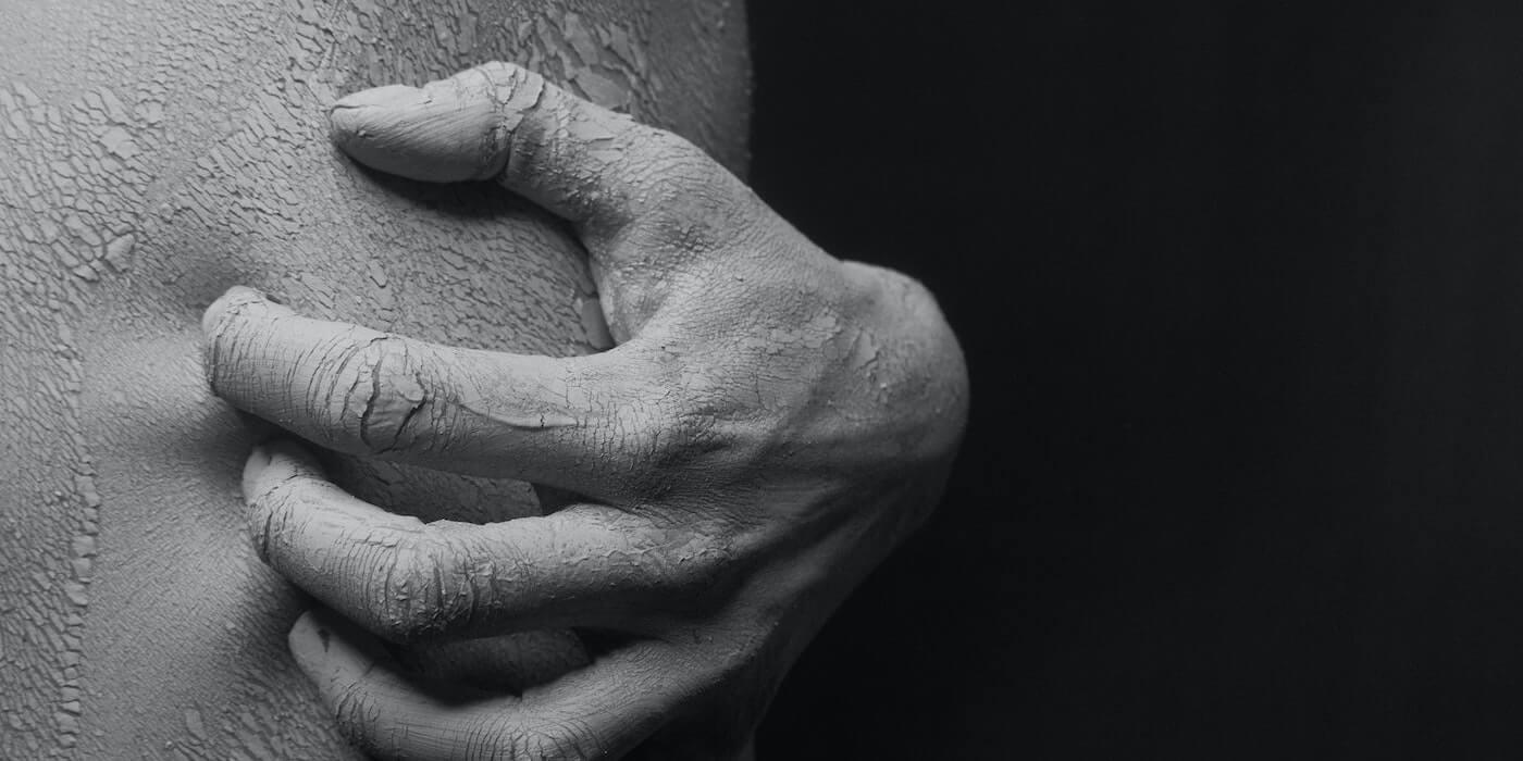 Hand kratzt auf der Haut | Kristina Nor - Pexels