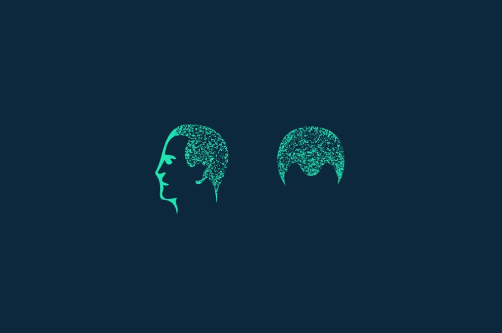 Diffuser Haarausfall: Gleichmäßiger Verlust der Haare auf der gesamten Kopfhaut.