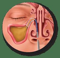 Dilate & Restore - Balloon Sinuplasty procedure
