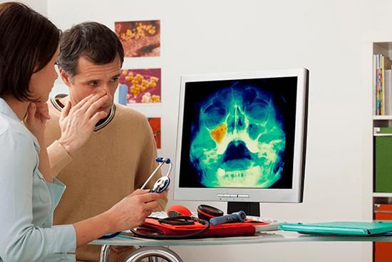 Balloon Sinuplasty: In-office treatment for sinusitis