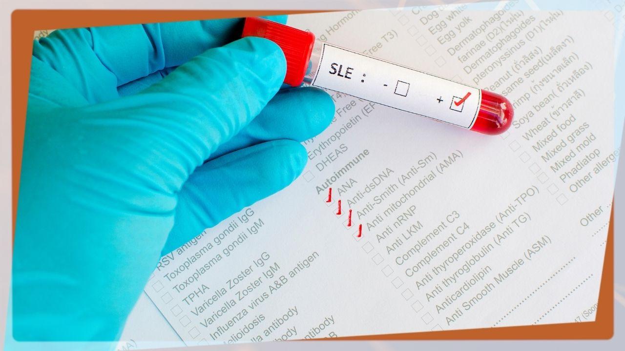 Il Lupus Eritematoso Sistemico