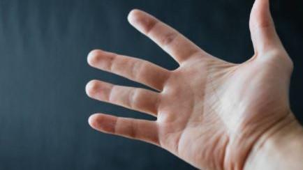 Sclerodermia, un cenno alle terapie