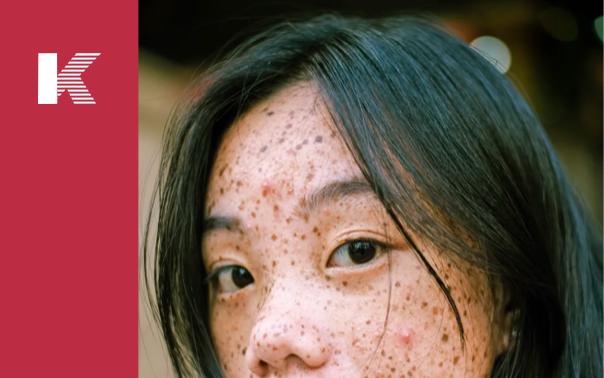 Respondiendo las preguntas más frecuentes sobre la hiperpigmentación