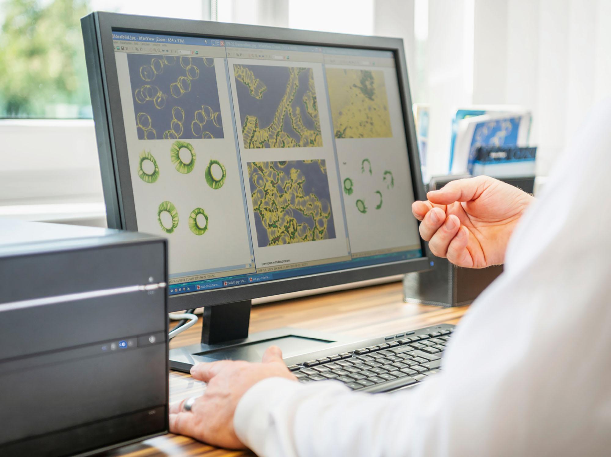 Analyse an einem Computerbildschirm
