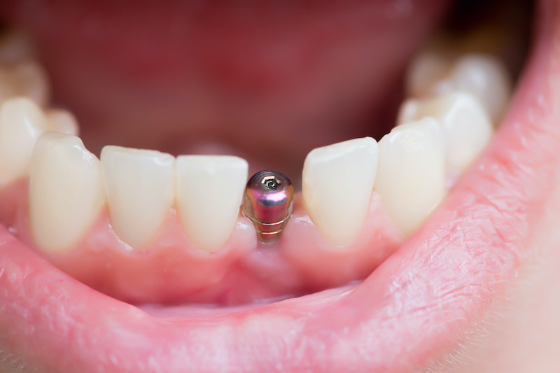 Image of a dental implant and healing abutment replacing a single missing tooth in the front of the lower jaw