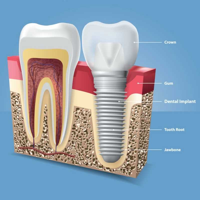 Illustration of a natural tooth and implant tooth side by side.