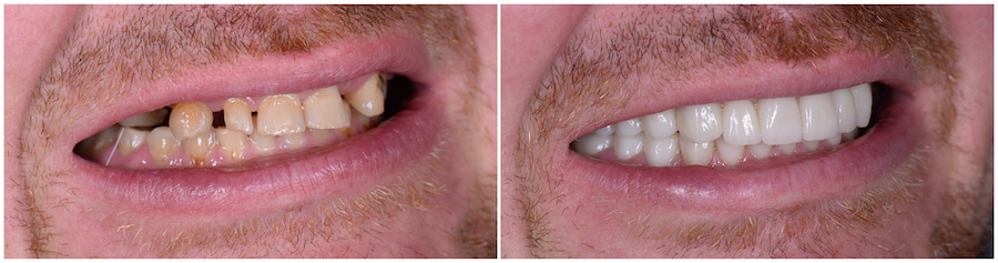 Image of smile showing before and after dental implants and porcelain veneers to restore a worn down and missing teeth