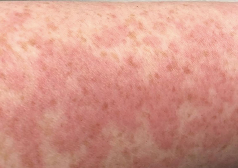 Covid-19 Skin Rash