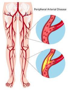 Peripheral Artery Disease PAD