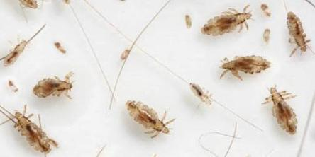 How to Recognize Head Lice