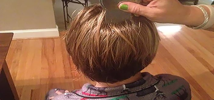 Some Things That You Should Know About Head Lice