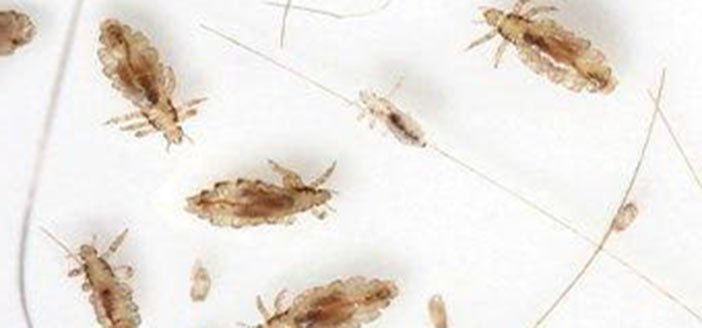 What Does Head Lice Look Like?