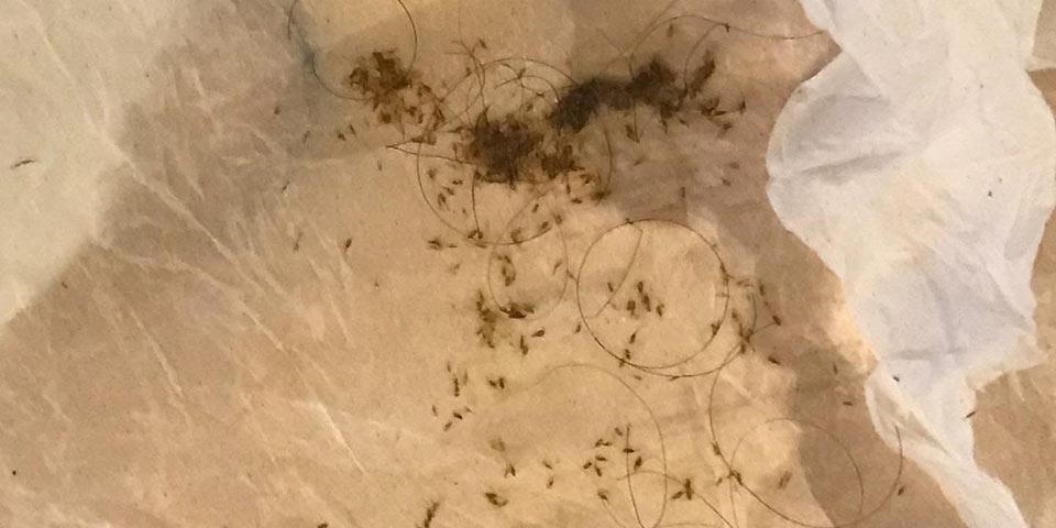 huntington beach lice infestation needs professional treatment louse nit bug egg