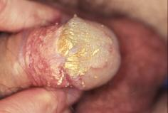 Image of a head of penis with a build up of smegma