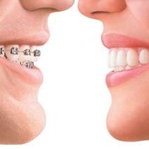 Aligners / Orthodontics