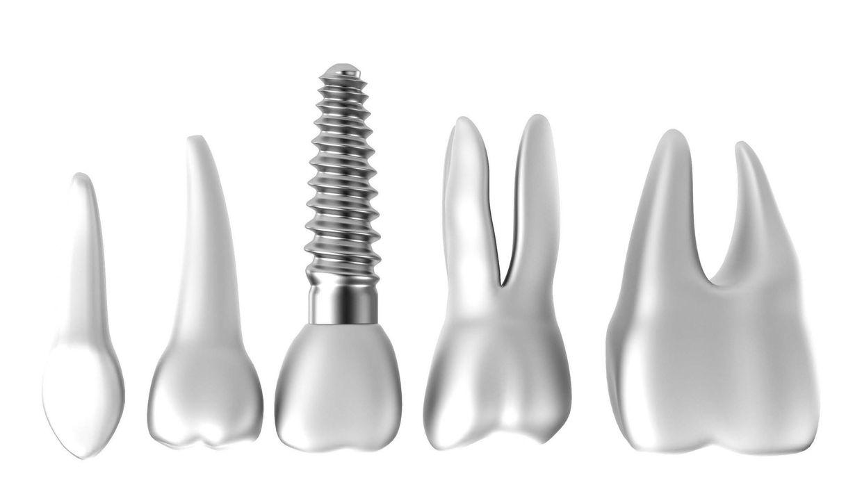Zahn-Implantate