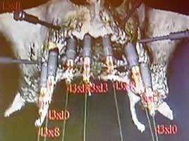 Simulation der Implantatesetzung