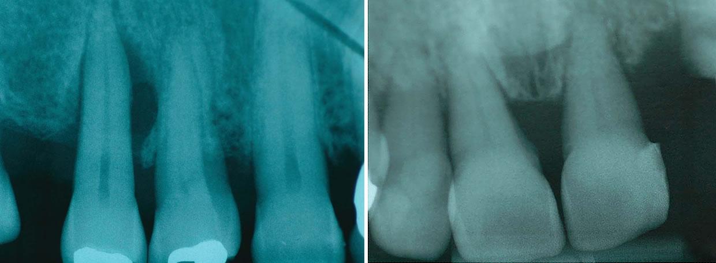 Röntgenbilder Parodontitis