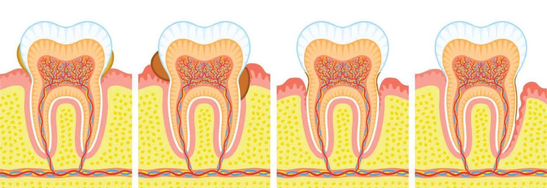 Bakterien - Zahnstein - Knochenabbau