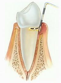 Zahnarzt Aarau: Taschentiefenmessung bei Parodontitis